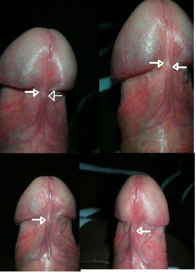Déchirure de la peau du pénis